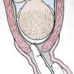 Соевый соус при беременности
