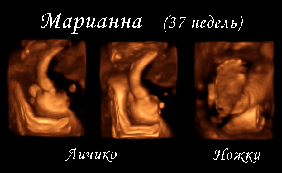 На какой неделе делают третье узи беременным 816