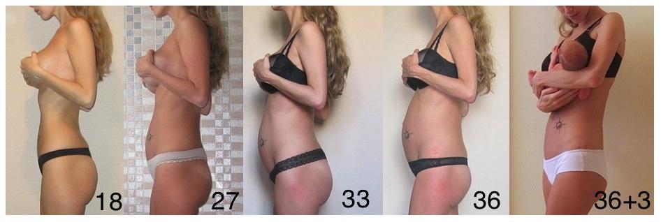 Сама худая а живот как у беременной