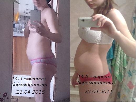 15 14 недель беременности фото