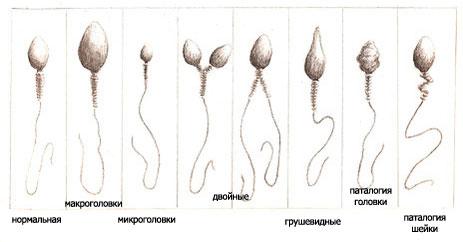Не поступательное движение сперматозоидов