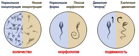Сперма не здорового цвета