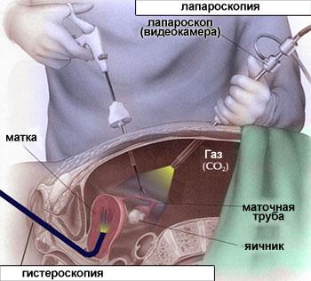 Секс после лапароскопической операции