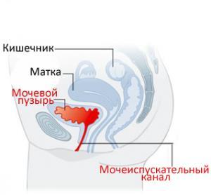 Что пить во время беременности при цистите