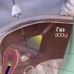 Задержка после лапароскопии маточных труб