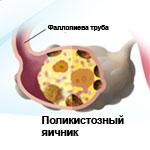 СПКЯ (синдром поликистозных яичников) в гинекологии: развитие, симптомы, лечение