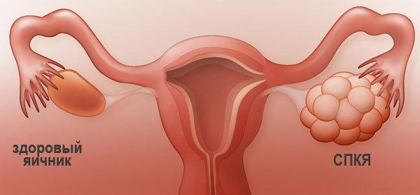 Синдром поликистозных яичников и СПКЯ
